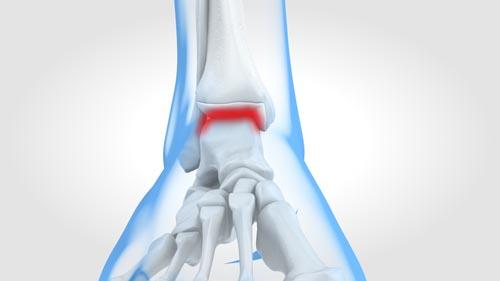 Image Chirurgie de l'arthrose de la cheville