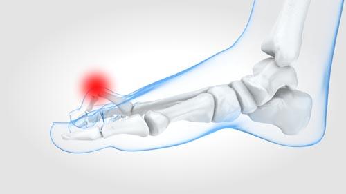Image Opération de l'orteil en griffe