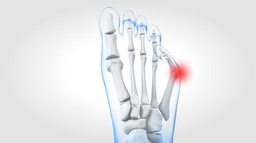 Image Chirurgien spécialisé dans la bunionette du pied
