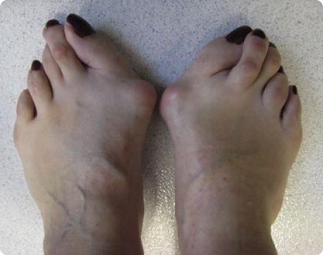 Pied rhumatoide avant pied